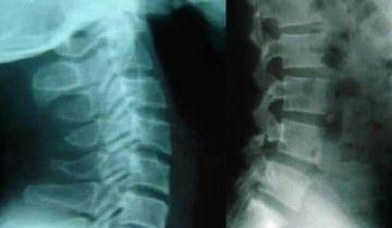 X-quang thoái hóa cột sống